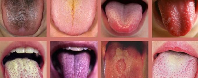Zeg eens AAA… wat jouw tong allemaal te vertellen heeft