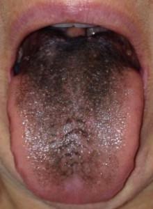 blank-tongue